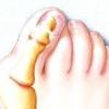 Чим можна вилікувати шишки на ногах?