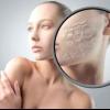 Що робити, щоб не сохла шкіра