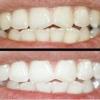 Ще раз про відбілюванні зубів