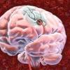 Як лікувати рак мозку