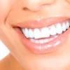Як можна позбутися зубного каменю в домашніх умовах?