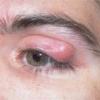 Як потрібно лікувати ячмінь на оці, щоб він швидко пройшов?