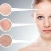 Як визначити тип шкіри