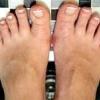 Як вилікувати грибок на ногах: що найбільш ефективно?
