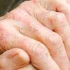 Як вилікувати екзему на руках: медичні і народні засоби