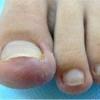 Як вилікувати врослий ніготь і чи можна це зробити без операції?