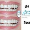 Яким чином проводить відновлення зуба стоматологія